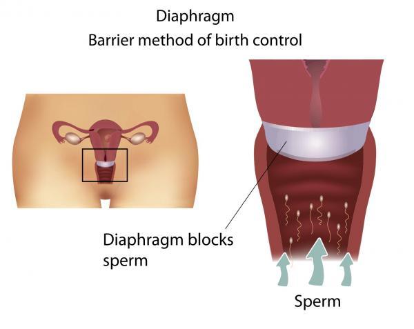 vaginalniy-metod-kontratseptsii